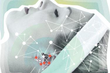acupuncture-illustration